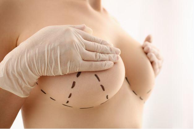 Breast Augmentation Malaysia